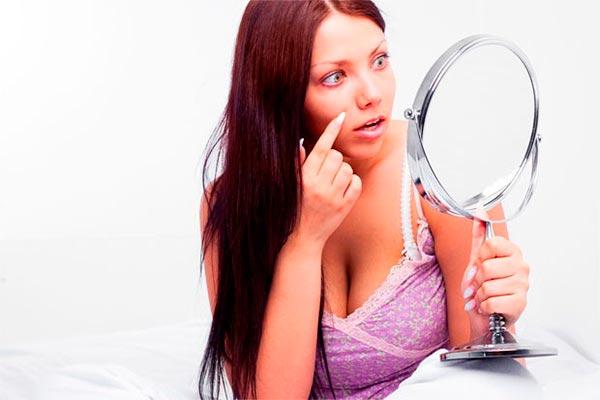 ¿Cómo combatir el acné? Consejos para quinceañeras